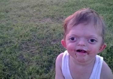 Mãe luta para remover memes com rosto de seu filho deficiente da internet