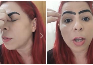 Mulher faz sobrancelha definitiva e o resultado quebra a Internet