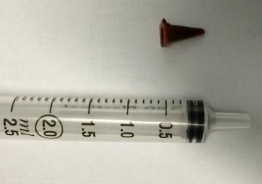 Paciente que pensava ter câncer descobre que tumor era peça de brinquedo