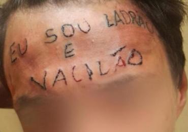 'Vaquinha' arrecada fundos para remoção de tatuagem na testa de jovem