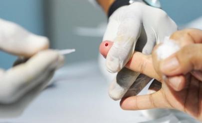 Testes de Hepatite B e C são realizados de graça em Goiânia