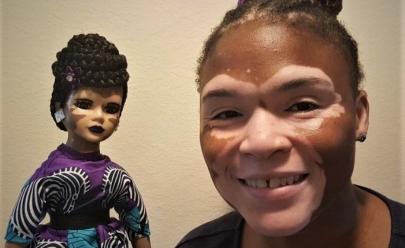 Artista cria bonecas com vitiligo para melhorar autoestima de crianças