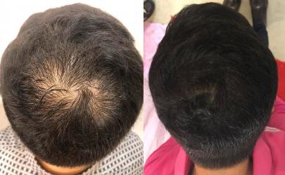 Empresa em Goiânia cria tratamento capilar inovador e natural com eficácia comprovada contra queda de cabelo e calvície