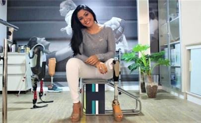 Goiana que teve a perna amputada faz sucesso no Instagram como 'blogueira do bem'