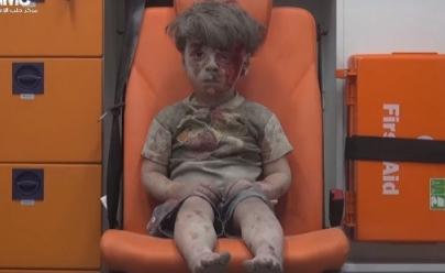 Vídeo de criança resgatada em bombardeio na Síria comove a web