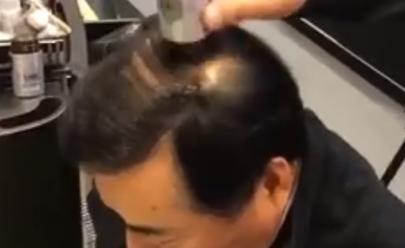 Produto 'milagroso' promete mudar a vida de quem sofre de calvície e queda de cabelo em 30 segundos