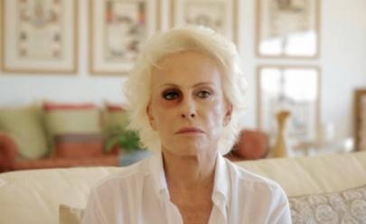 Ana Maria Braga explica motivo do olho roxo após onda de boatos